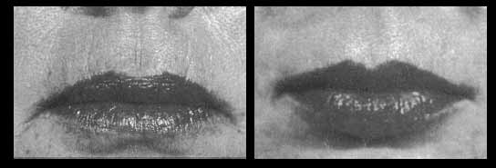 Laser and Lip Augmentation