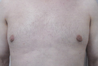 Male Breast Liposuction Male - Next Day