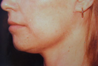 Chin Lift Female - 4 Weeks Later