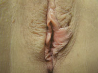 Labiaplasty - Before
